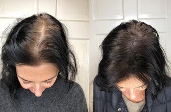 Un scalp nesanatos si boala febrila - cauze ale pierderii parului - III